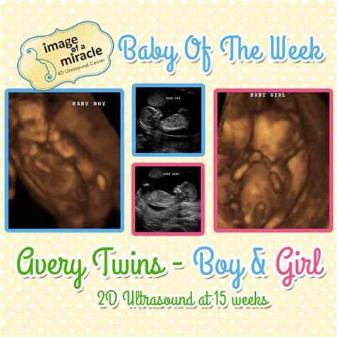 Baby of the Week - Avery Twins! - Image of a Miracle 4D