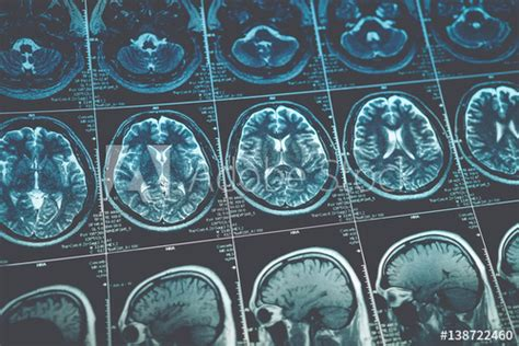 """""""MRI or magnetic resonance image of head and brain scan"""